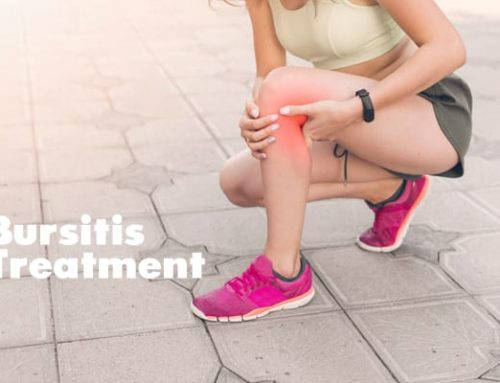 Bursitis treatment